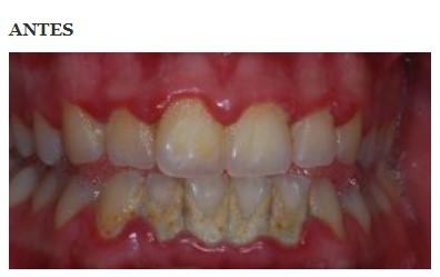 periodoncia 2 antes