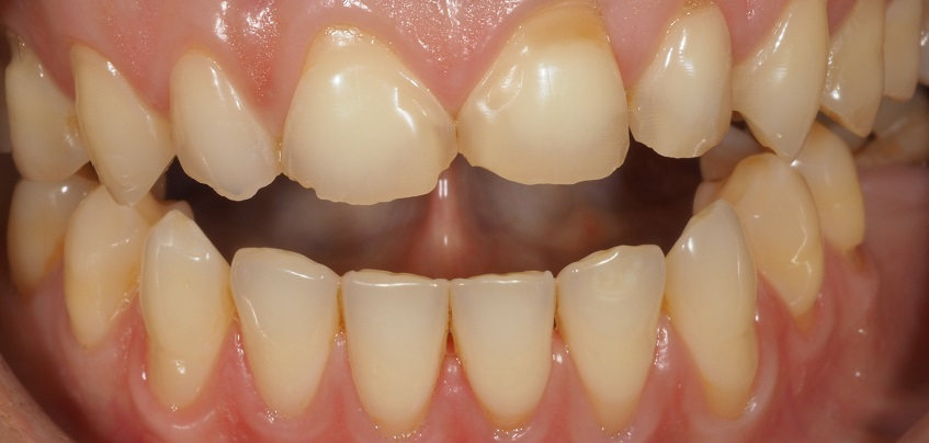 EROSION DENTAL